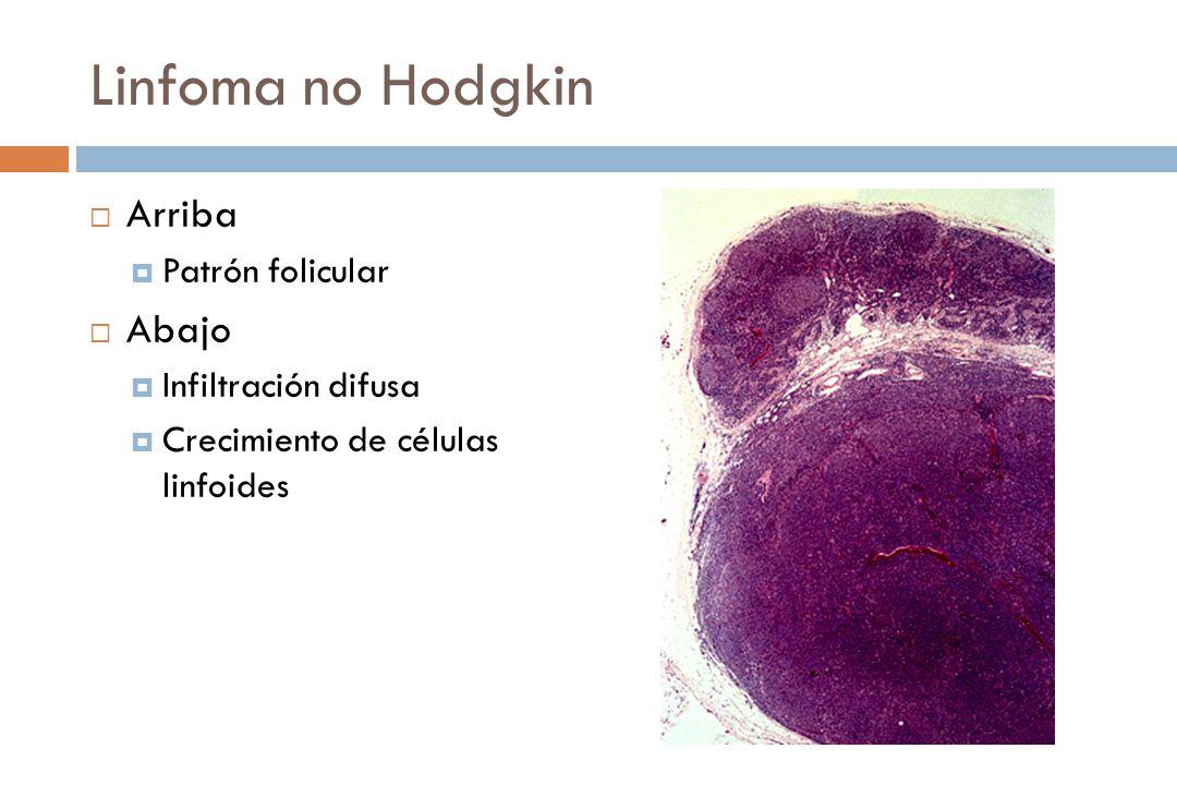 Linfoma no Hodgkin Arriba Patrón folicular Abajo Infiltración difusa Crecimiento de células linfoides