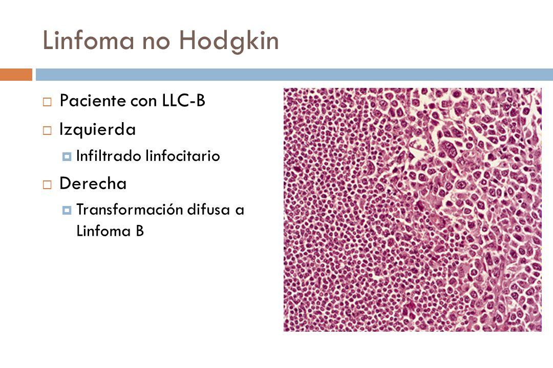 Linfoma no Hodgkin Paciente con LLC-B Izquierda Infiltrado linfocitario Derecha Transformación difusa a Linfoma B