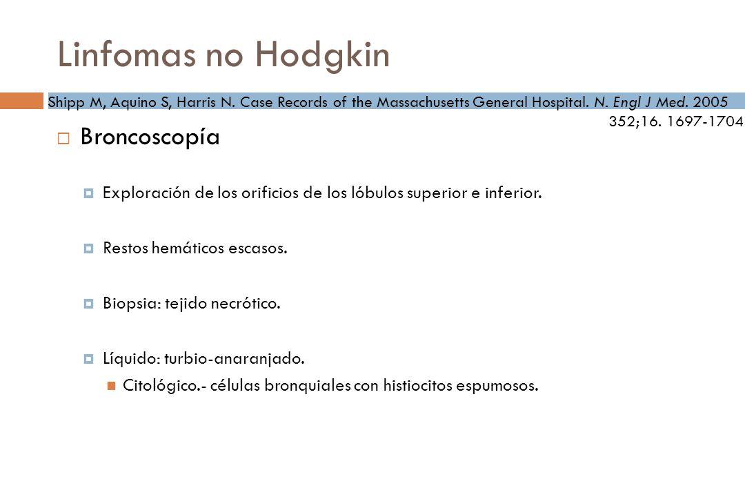 Linfomas no Hodgkin Broncoscopía Exploración de los orificios de los lóbulos superior e inferior.