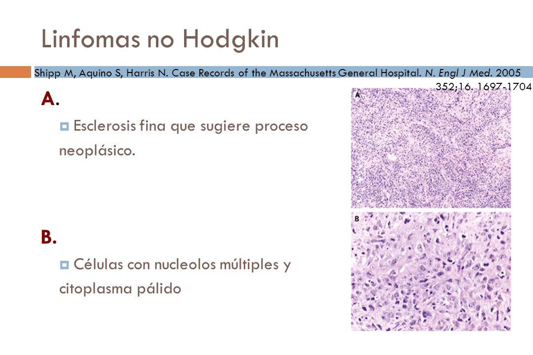 Linfomas no Hodgkin A.Esclerosis fina que sugiere proceso neoplásico.
