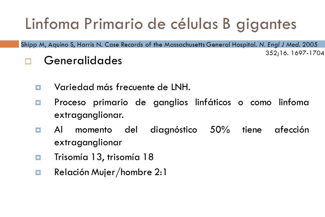 Linfoma Primario de células B gigantes Generalidades Variedad más frecuente de LNH.