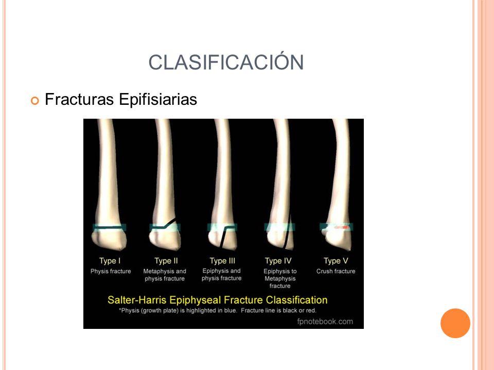 CLASIFICACIÓN Fracturas Epifisiarias