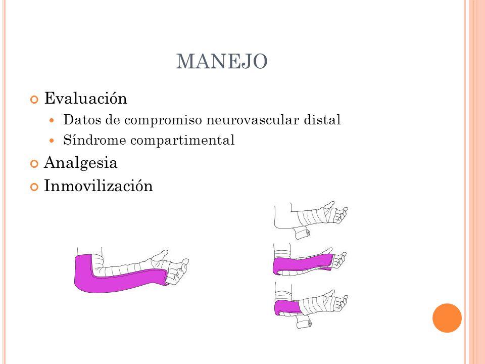 MANEJO Evaluación Datos de compromiso neurovascular distal Síndrome compartimental Analgesia Inmovilización