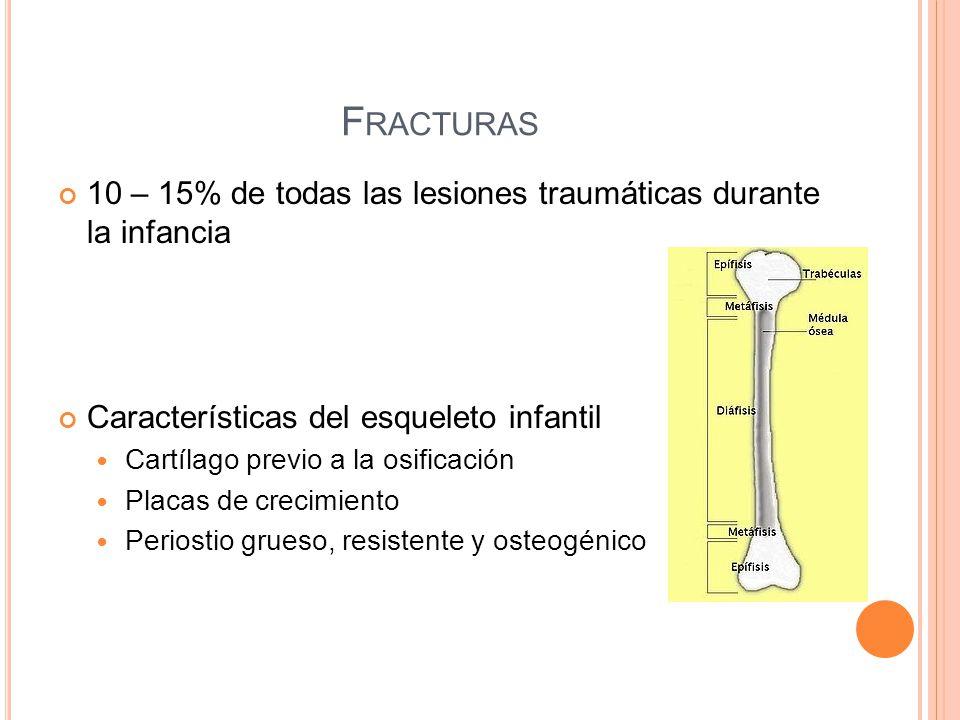 F RACTURAS 10 – 15% de todas las lesiones traumáticas durante la infancia Características del esqueleto infantil Cartílago previo a la osificación Pla