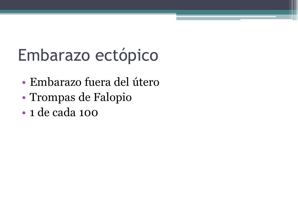 Embarazo ectópico Embarazo fuera del útero Trompas de Falopio 1 de cada 100