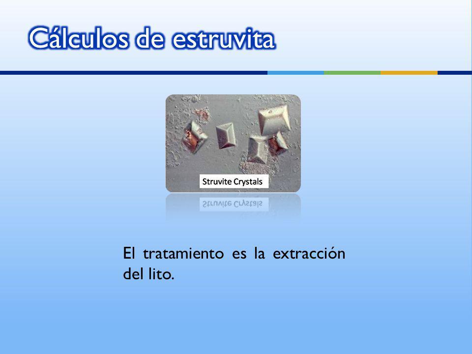 El tratamiento es la extracción del lito.