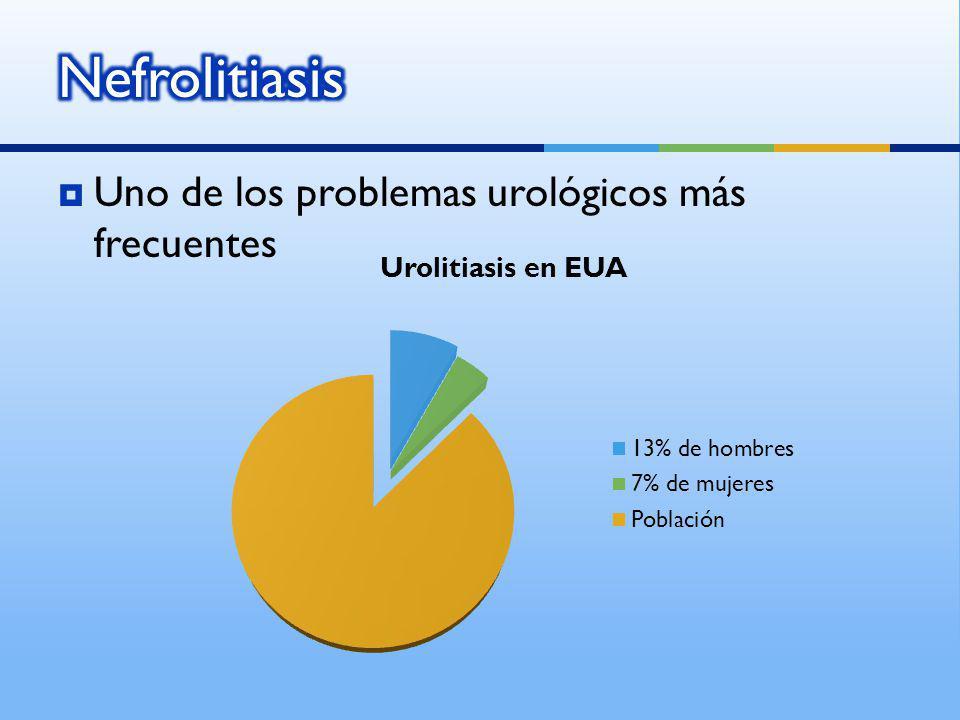Uno de los problemas urológicos más frecuentes