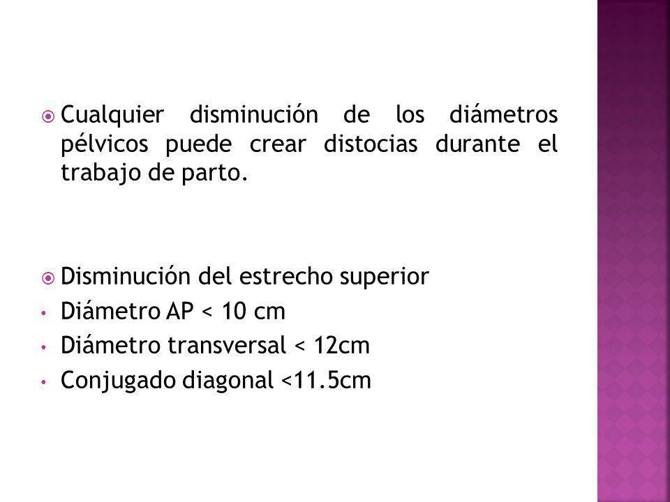 Cualquier disminución de los diámetros pélvicos puede crear distocias durante el trabajo de parto. Disminución del estrecho superior Diámetro AP < 10