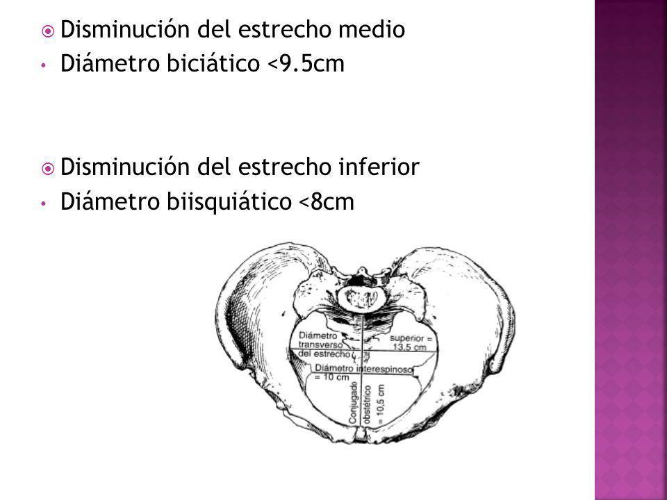 Disminución del estrecho medio Diámetro biciático <9.5cm Disminución del estrecho inferior Diámetro biisquiático <8cm