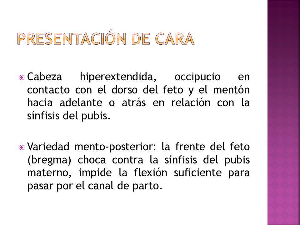 Cabeza hiperextendida, occipucio en contacto con el dorso del feto y el mentón hacia adelante o atrás en relación con la sínfisis del pubis. Variedad