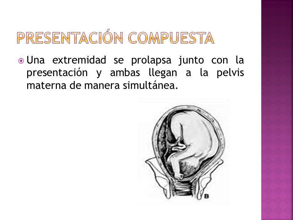 Una extremidad se prolapsa junto con la presentación y ambas llegan a la pelvis materna de manera simultánea.