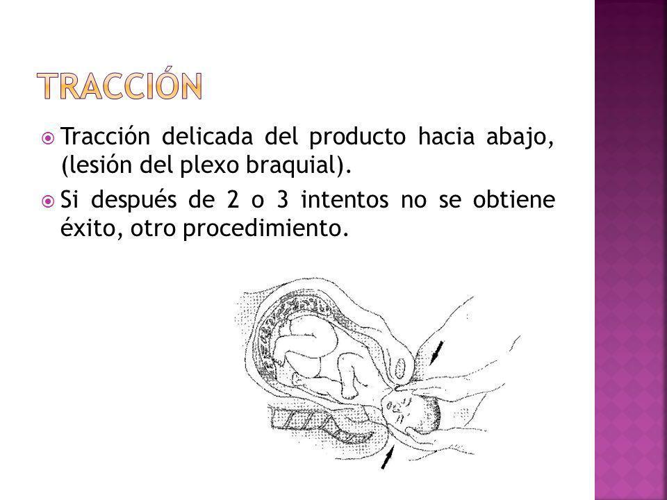 Tracción delicada del producto hacia abajo, (lesión del plexo braquial). Si después de 2 o 3 intentos no se obtiene éxito, otro procedimiento.