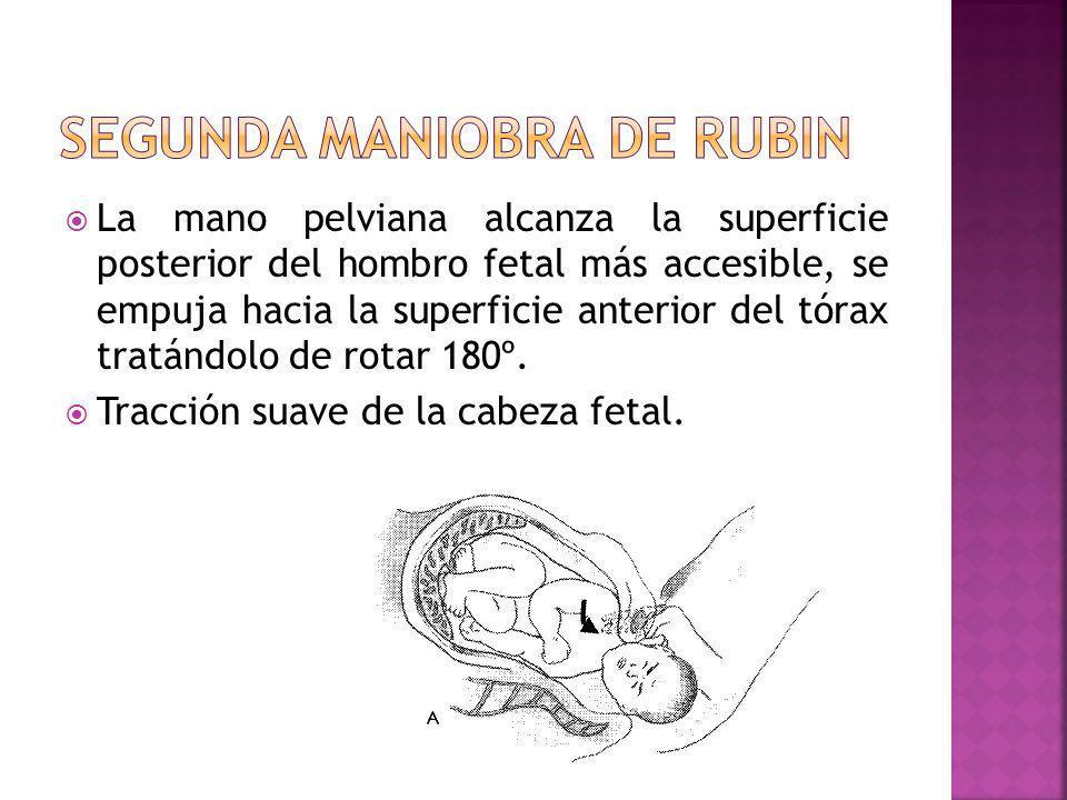 La mano pelviana alcanza la superficie posterior del hombro fetal más accesible, se empuja hacia la superficie anterior del tórax tratándolo de rotar