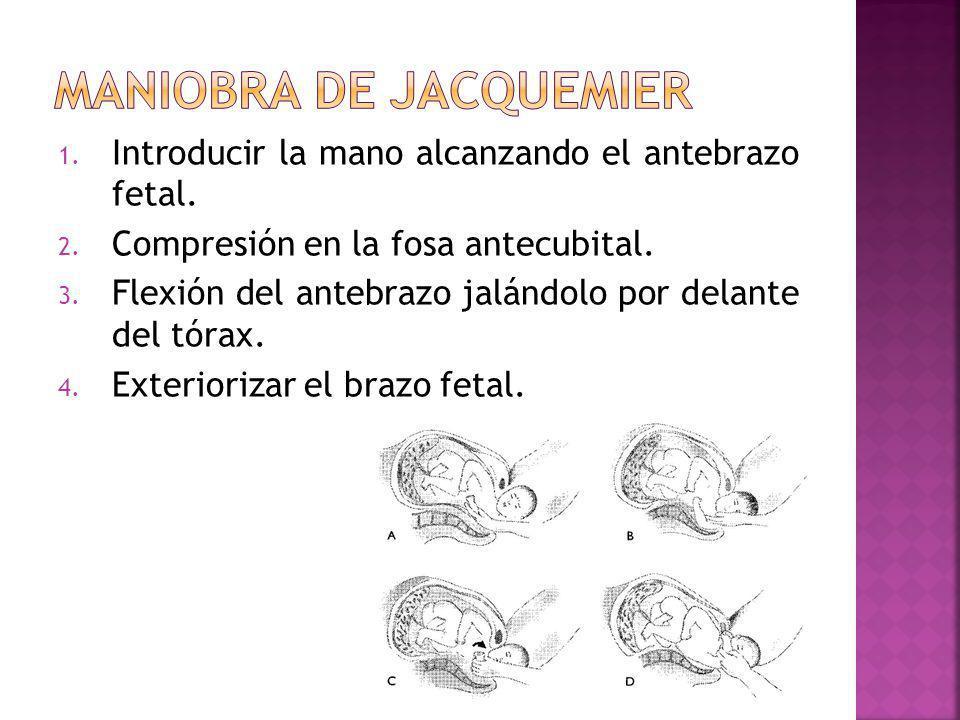1. Introducir la mano alcanzando el antebrazo fetal. 2. Compresión en la fosa antecubital. 3. Flexión del antebrazo jalándolo por delante del tórax. 4