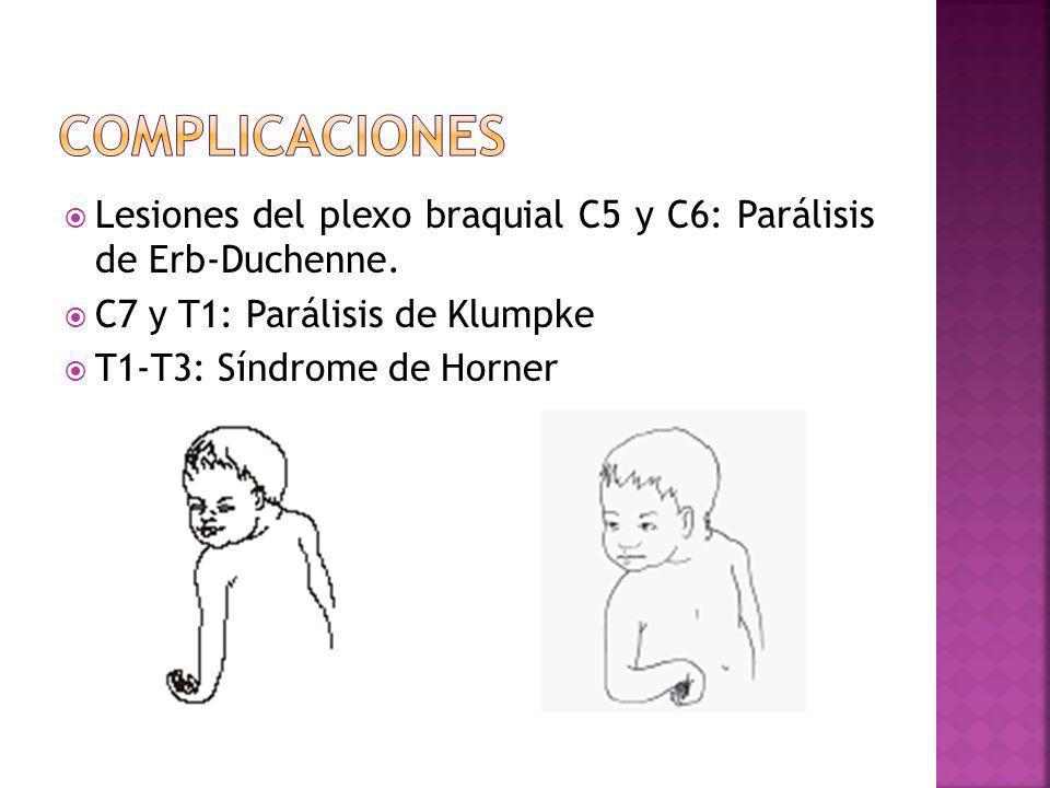 Lesiones del plexo braquial C5 y C6: Parálisis de Erb-Duchenne. C7 y T1: Parálisis de Klumpke T1-T3: Síndrome de Horner