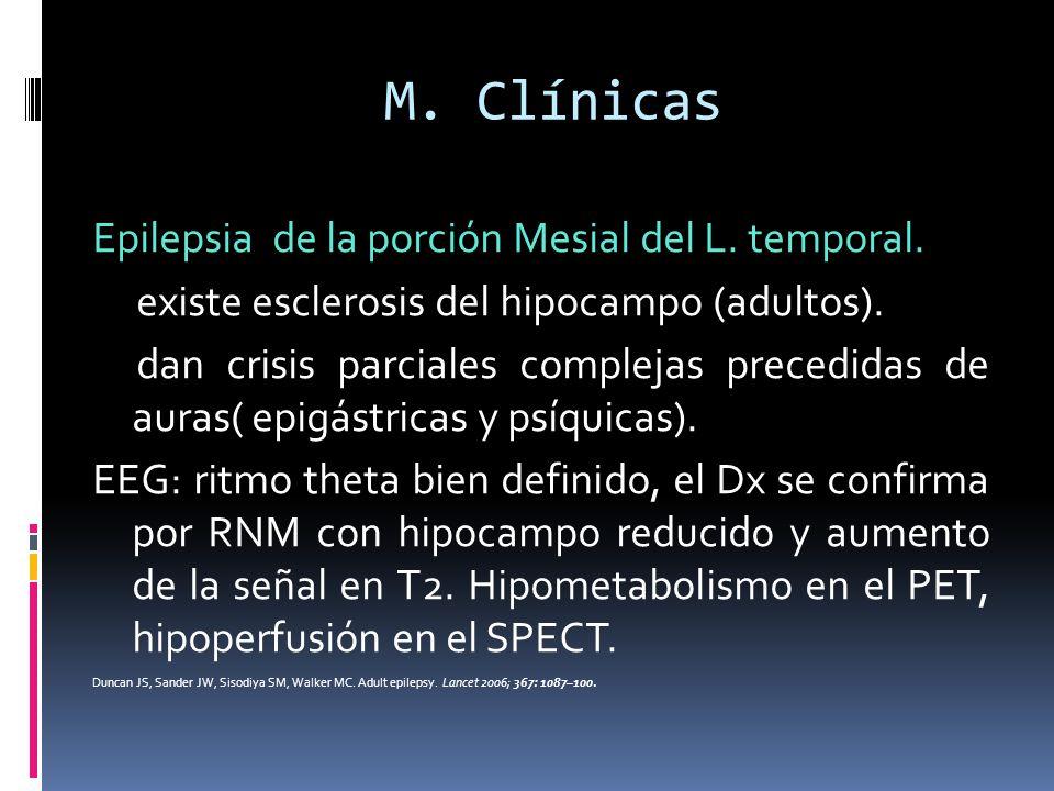 M. Clínicas Epilepsia de la porción Mesial del L. temporal. existe esclerosis del hipocampo (adultos). dan crisis parciales complejas precedidas de au