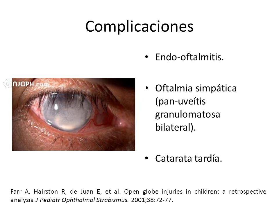 Complicaciones Endo-oftalmitis.Oftalmia simpática (pan-uveítis granulomatosa bilateral).