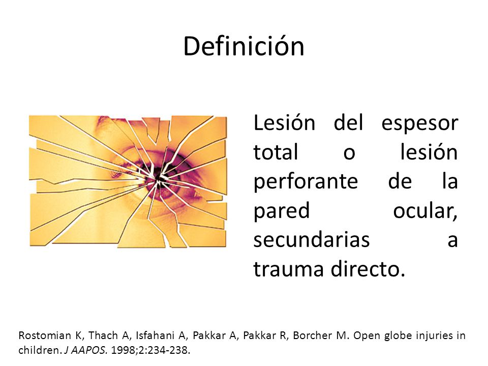 Definición Lesión del espesor total o lesión perforante de la pared ocular, secundarias a trauma directo.