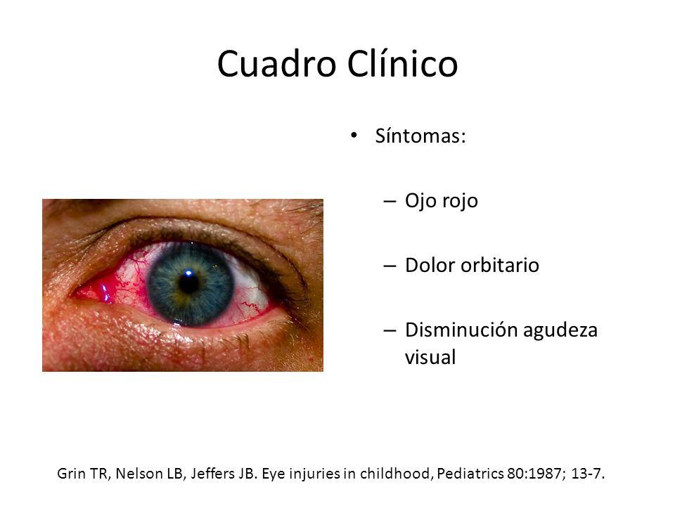 Cuadro Clínico Síntomas: – Ojo rojo – Dolor orbitario – Disminución agudeza visual Grin TR, Nelson LB, Jeffers JB.