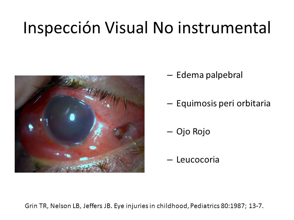 Inspección Visual No instrumental – Edema palpebral – Equimosis peri orbitaria – Ojo Rojo – Leucocoria Grin TR, Nelson LB, Jeffers JB.