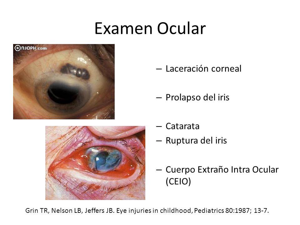 Examen Ocular – Laceración corneal – Prolapso del iris – Catarata – Ruptura del iris – Cuerpo Extraño Intra Ocular (CEIO) Grin TR, Nelson LB, Jeffers JB.