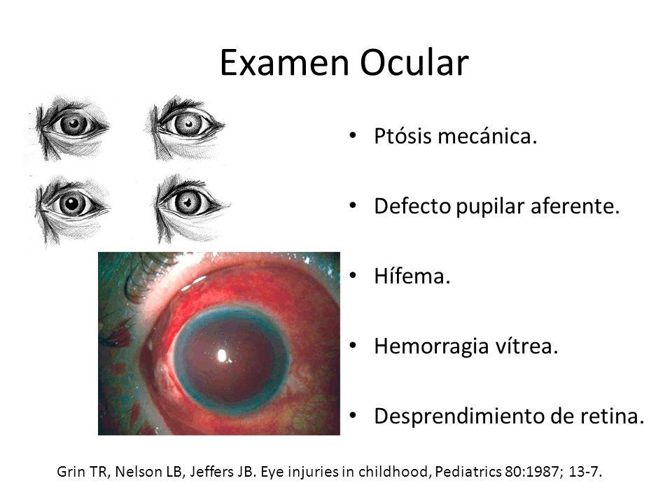 Examen Ocular Ptósis mecánica.Defecto pupilar aferente.