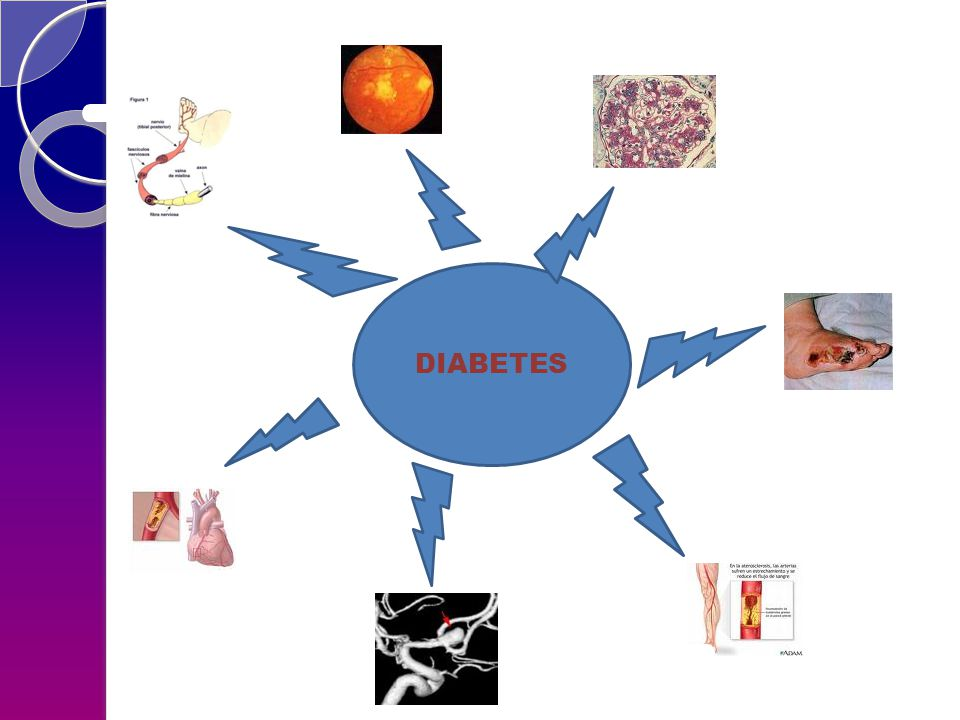 NEFROPATIA DIABÉTICA Gross et al, Diabetic Nefropaty: Diagnosis, prevention and treatment.