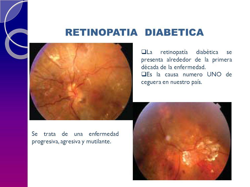 RETINOPATIA DIABETICA La retinopatía diabética se presenta alrededor de la primera década de la enfermedad. Es la causa numero UNO de ceguera en nuest