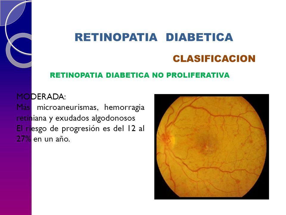 RETINOPATIA DIABETICA CLASIFICACION RETINOPATIA DIABETICA NO PROLIFERATIVA MODERADA: Más microaneurismas, hemorragia retiniana y exudados algodonosos El riesgo de progresión es del 12 al 27% en un año.