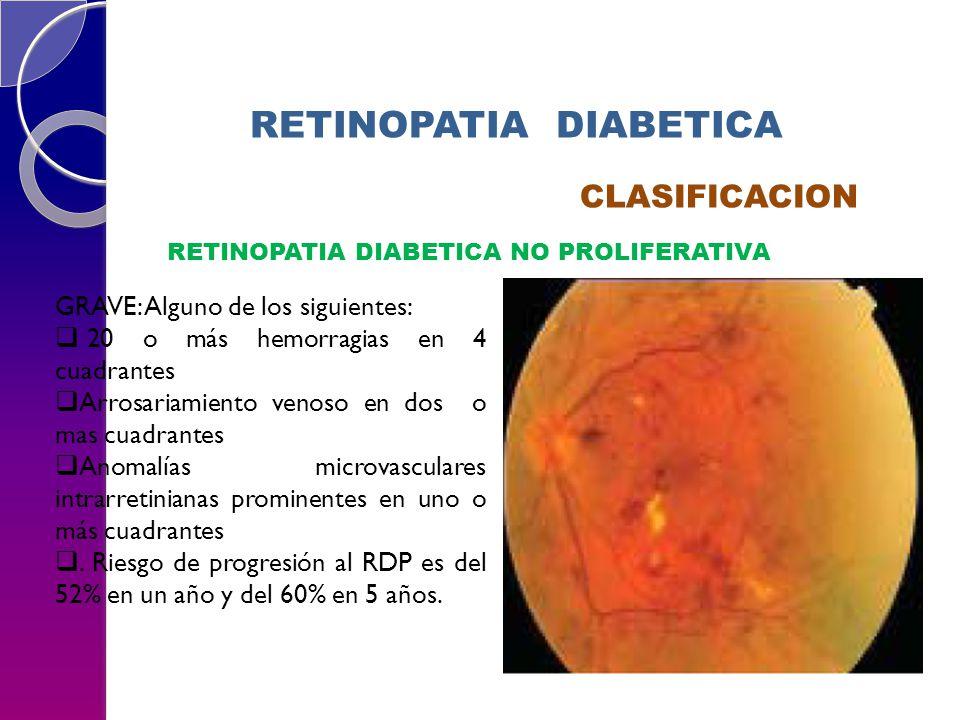 RETINOPATIA DIABETICA CLASIFICACION RETINOPATIA DIABETICA NO PROLIFERATIVA GRAVE: Alguno de los siguientes: 20 o más hemorragias en 4 cuadrantes Arros