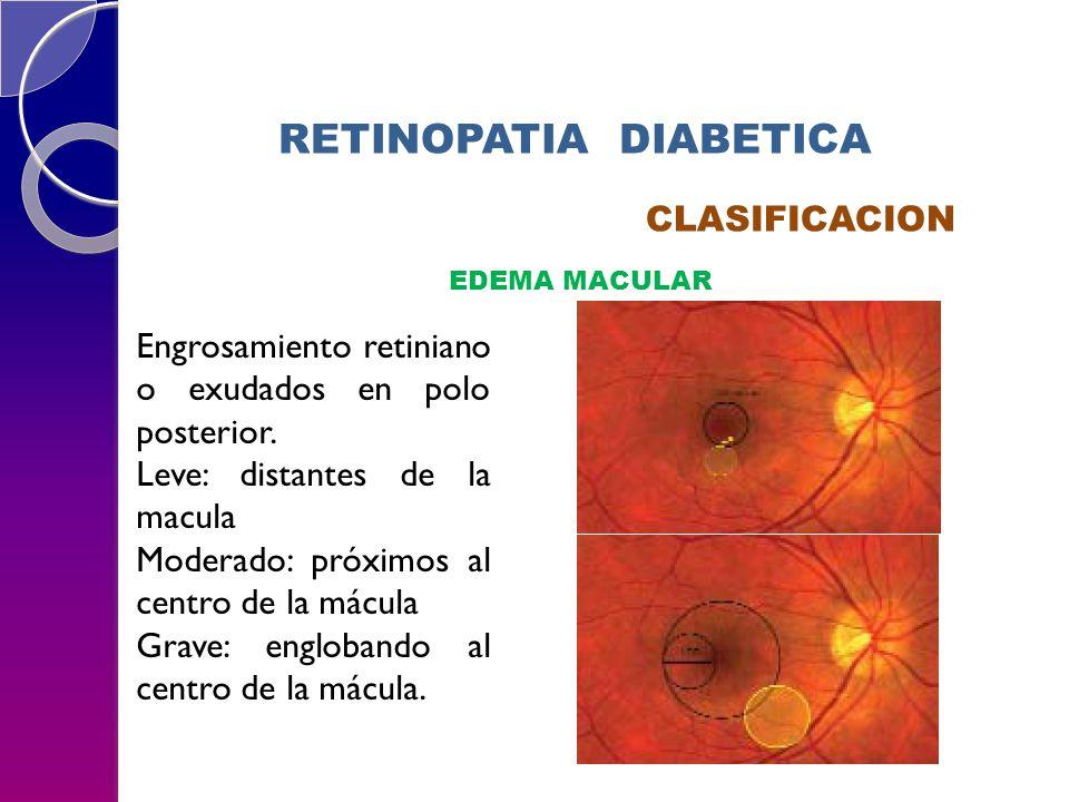 RETINOPATIA DIABETICA CLASIFICACION EDEMA MACULAR Engrosamiento retiniano o exudados en polo posterior. Leve: distantes de la macula Moderado: próximo