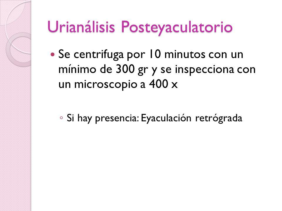 Ultrasonido transrectal Indicado en azoospermia con vasa palpable o con bajos volúmenes de eyaculado para ver si hay obstrucción de conducto