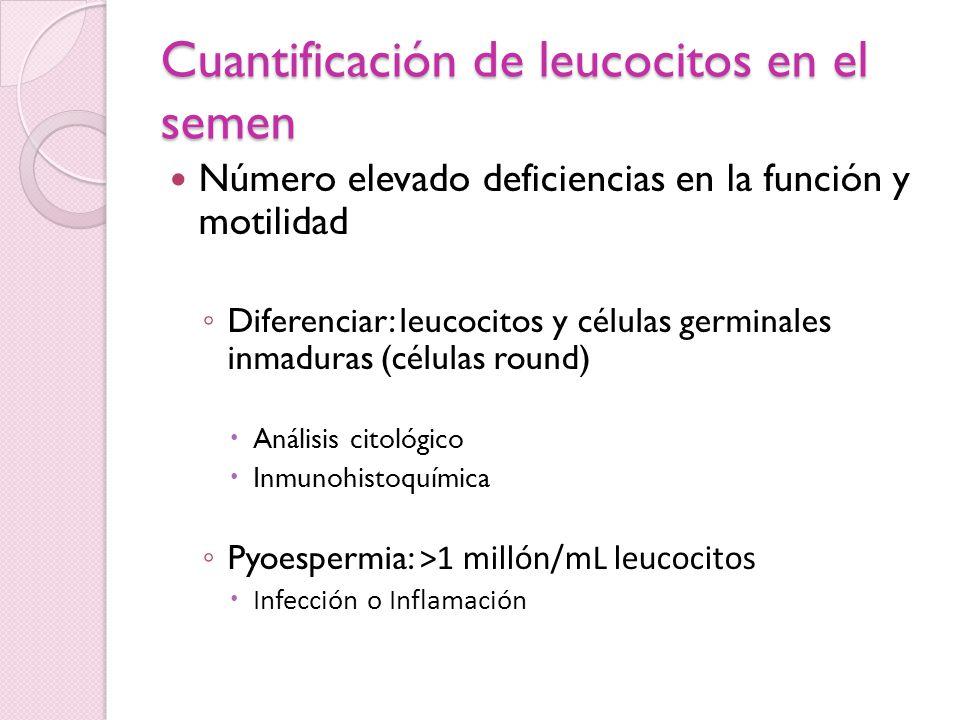 Anticuerpos antiespermáticos Factores de riesgo Obstrucción ductal Infección genital previa Trauma testicular Vasovasostomia previa Considerar: Astenospermia aislada con concentración normal de espermas, aglutinación de espermas o prueba postcoital anormal.