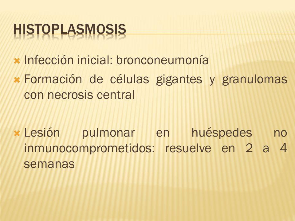 Infección inicial: bronconeumonía Formación de células gigantes y granulomas con necrosis central Lesión pulmonar en huéspedes no inmunocomprometidos: