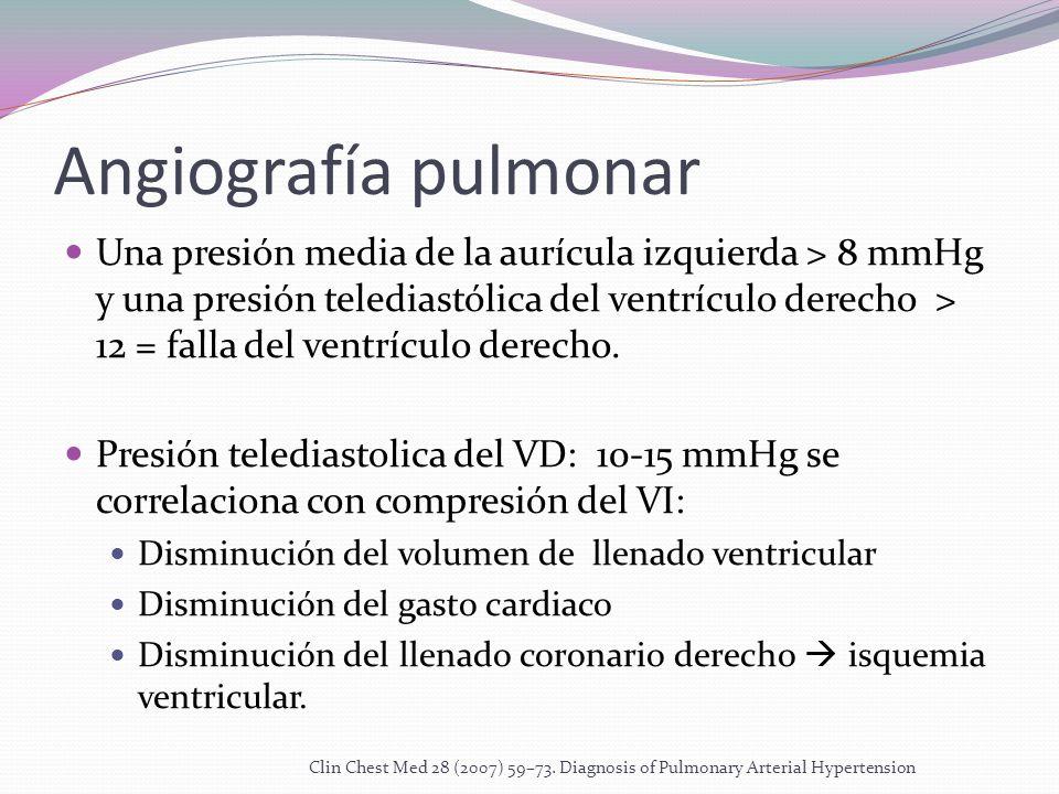 Angiografía pulmonar Una presión media de la aurícula izquierda > 8 mmHg y una presión telediastólica del ventrículo derecho > 12 = falla del ventrículo derecho.