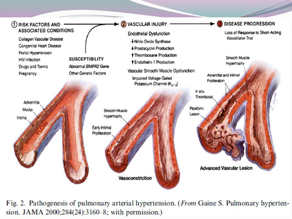 Histológicamente Panvasculopatía que afecta vasos de pequeño calibre predominantemente.