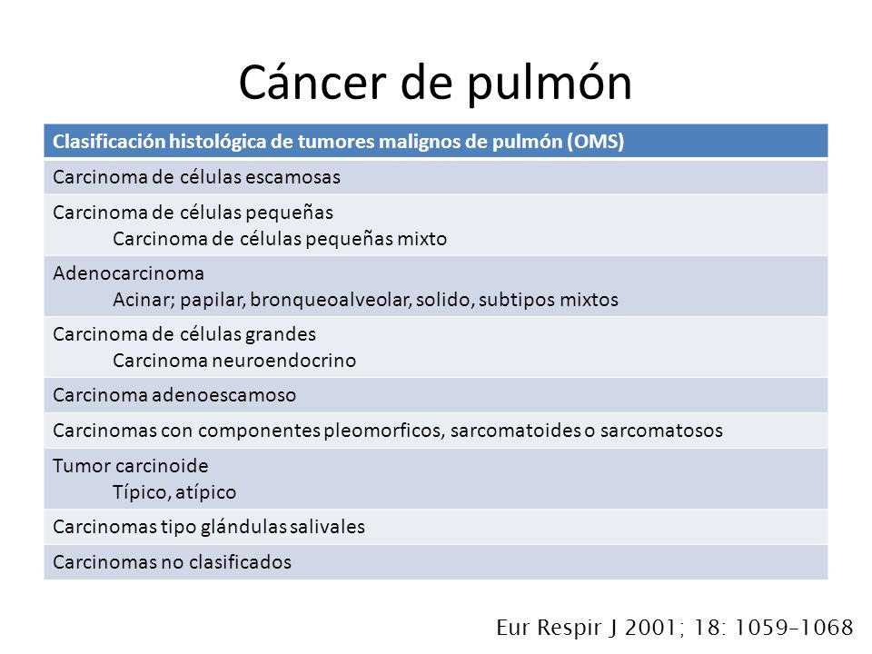 Clasificación histológica de tumores malignos de pulmón (OMS) Carcinoma de células escamosas Carcinoma de células pequeñas Carcinoma de células pequeñas mixto Adenocarcinoma Acinar; papilar, bronqueoalveolar, solido, subtipos mixtos Carcinoma de células grandes Carcinoma neuroendocrino Carcinoma adenoescamoso Carcinomas con componentes pleomorficos, sarcomatoides o sarcomatosos Tumor carcinoide Típico, atípico Carcinomas tipo glándulas salivales Carcinomas no clasificados Cáncer de pulmón Eur Respir J 2001; 18: 1059–1068