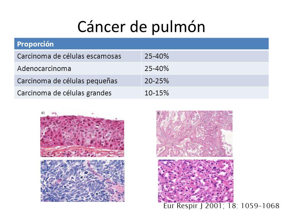 Proporción Carcinoma de células escamosas25-40% Adenocarcinoma25-40% Carcinoma de células pequeñas20-25% Carcinoma de células grandes10-15% Cáncer de pulmón Eur Respir J 2001; 18: 1059–1068