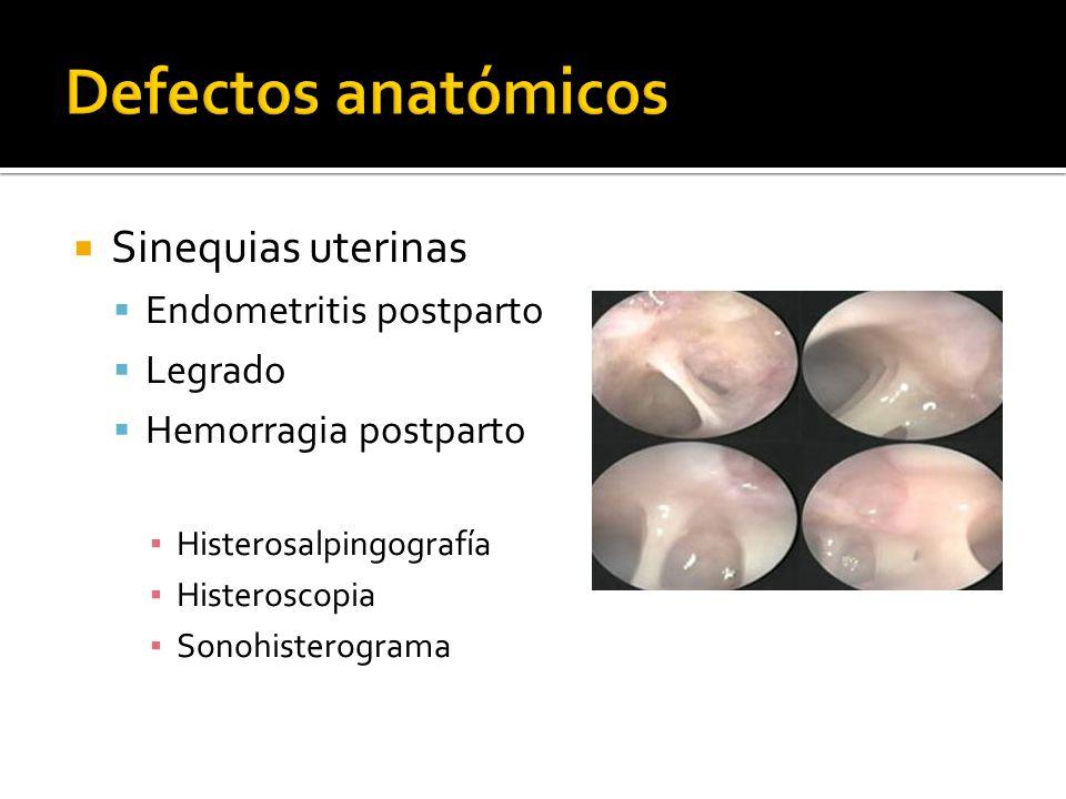Sinequias uterinas Endometritis postparto Legrado Hemorragia postparto Histerosalpingografía Histeroscopia Sonohisterograma