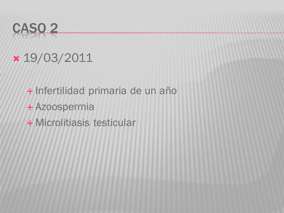 19/03/2011 Infertilidad primaria de un año Azoospermia Microlitiasis testicular
