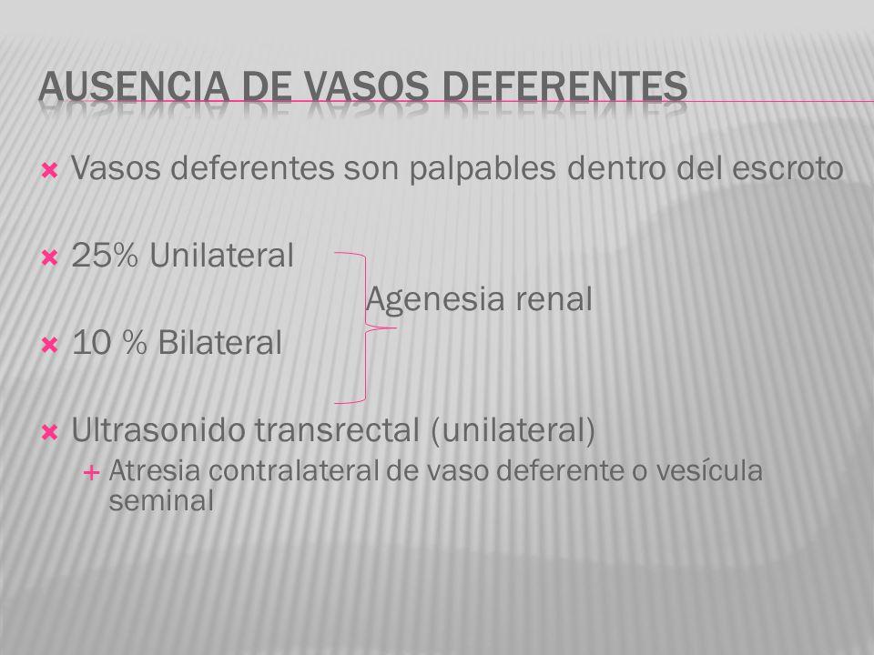 Vasos deferentes son palpables dentro del escroto 25% Unilateral Agenesia renal 10 % Bilateral Ultrasonido transrectal (unilateral) Atresia contralate
