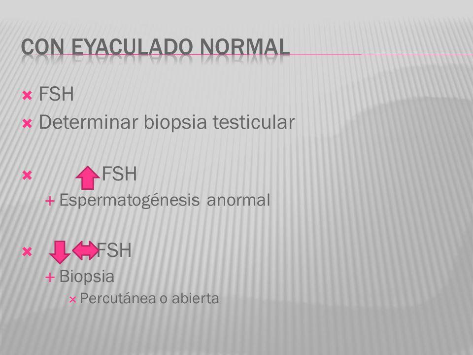 FSH Determinar biopsia testicular FSH Espermatogénesis anormal FSH Biopsia Percutánea o abierta