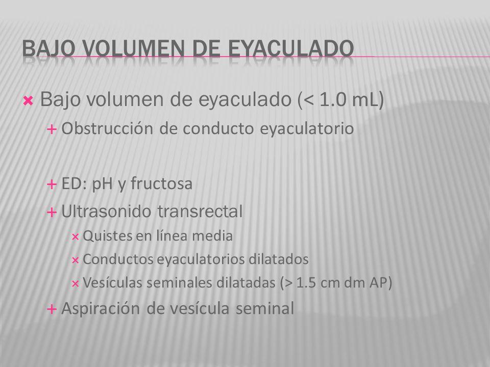 Bajo volumen de eyaculado ( < 1.0 mL) Obstrucción de conducto eyaculatorio ED: pH y fructosa Ultrasonido transrectal Quistes en línea media Conductos