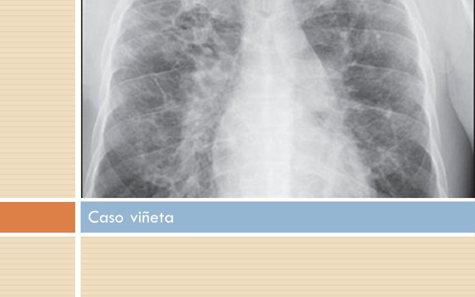 Fibrosis Pulmonar Idiopática Epidemiología Más común en varones Incidencia M 11/7 F Prevalencia M 20/ 13 F Más común edad avanzada Edad pico 67-69 años Incremento en incidencia 11% anual entre 1991 y 2003 se duplica el núm de dx cada 8 años.