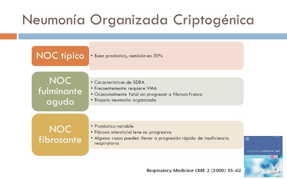 Neumonía Organizada Criptogénica Buen pronóstico, remisión en 50% NOC típico Características de SDRA Frecuentemente requiere VMA Ocasionalmente fatal