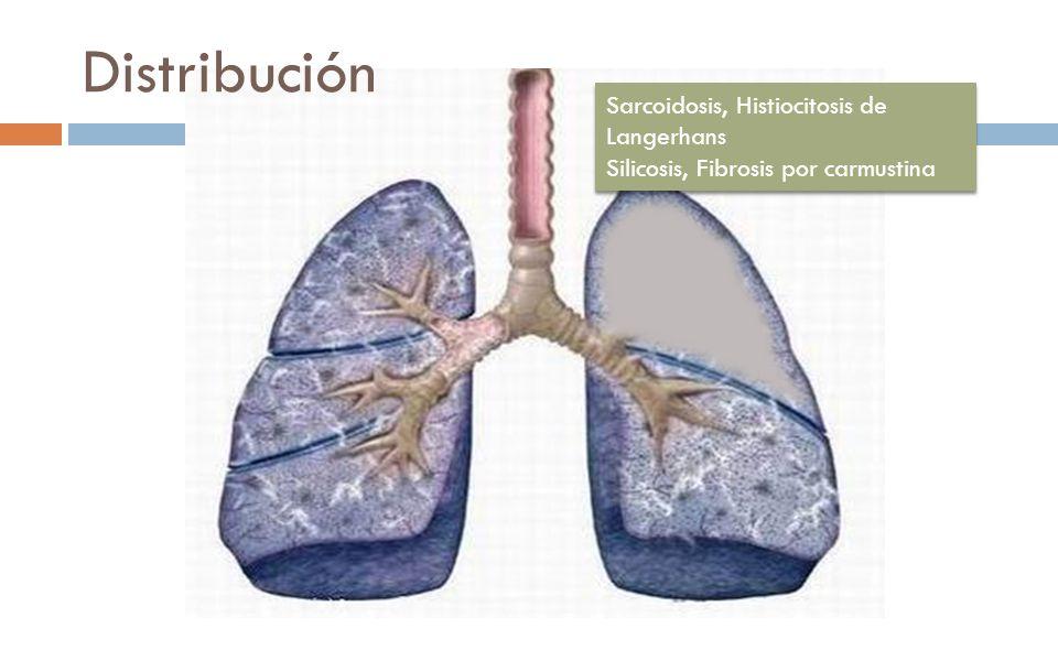 Distribución Sarcoidosis, Histiocitosis de Langerhans Silicosis, Fibrosis por carmustina Sarcoidosis, Histiocitosis de Langerhans Silicosis, Fibrosis