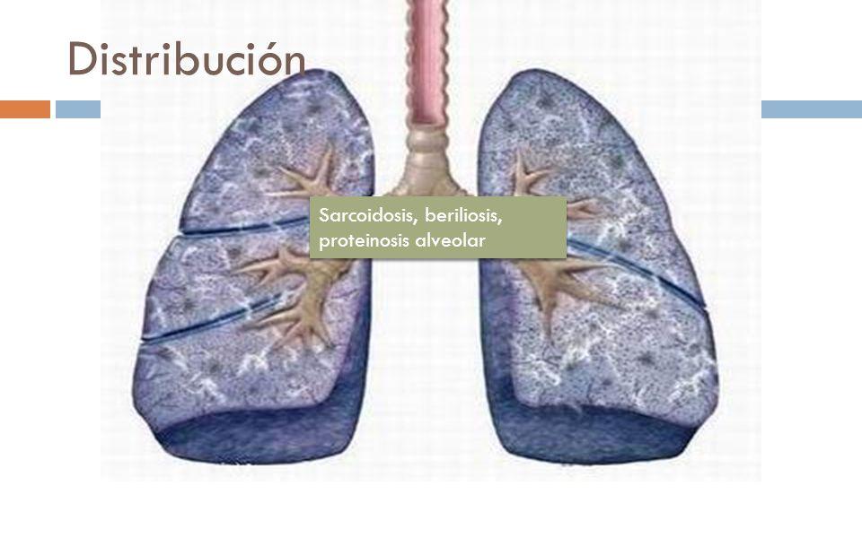 Sarcoidosis, beriliosis, proteinosis alveolar