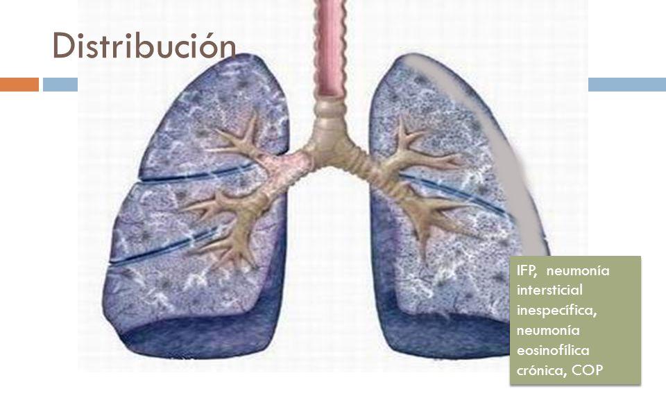 Distribución IFP, neumonía intersticial inespecífica, neumonía eosinofílica crónica, COP
