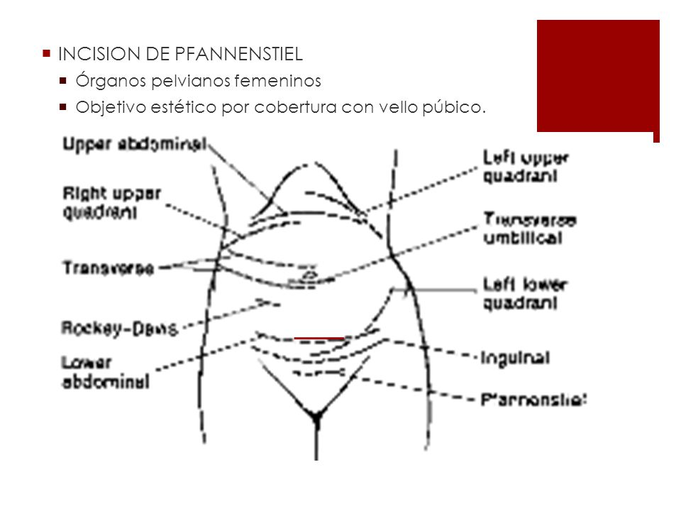 INCISION DE PFANNENSTIEL Órganos pelvianos femeninos Objetivo estético por cobertura con vello púbico.