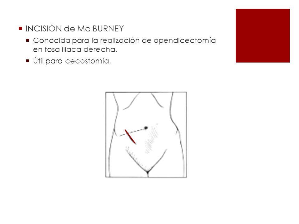 INCISIÓN de Mc BURNEY Conocida para la realización de apendicectomía en fosa iliaca derecha. Útil para cecostomía.